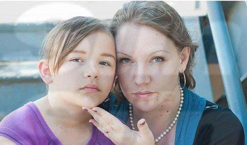 7歳の娘に美容整形をする母親 衝撃インタビュー