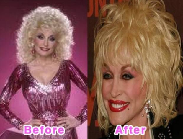 Dolly Partonのビフォーアフター