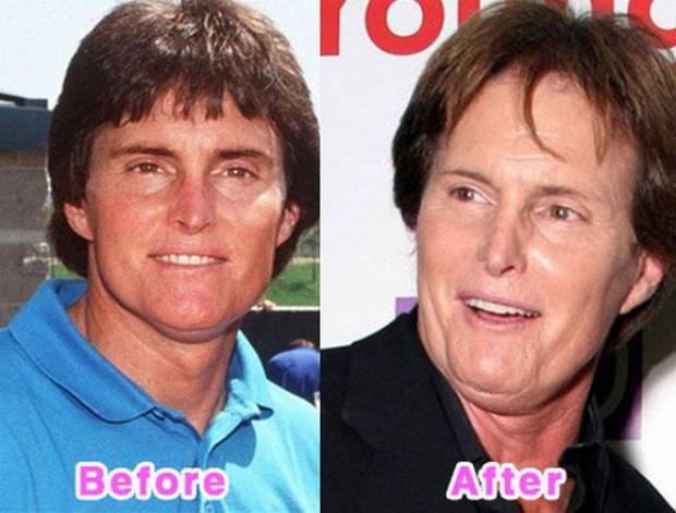 Bruce Jennerのビフォーアフター