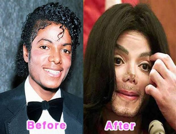 Michael Jacksonのビフォーアフター
