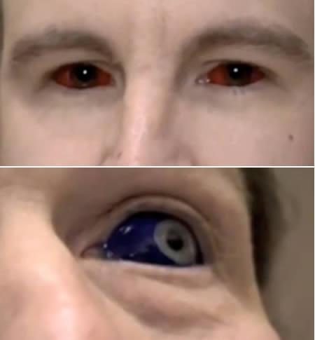 10 eyes