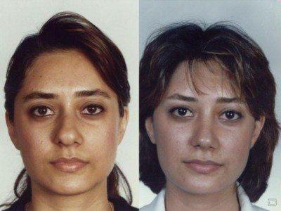 鼻を低く整形する女性