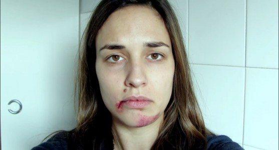【閲覧注意】1年間毎日自撮りした外国人女性、その理由が悲しすぎる